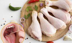 Những người bị viêm lợi có được ăn thịt gà không?