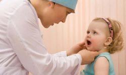 Bệnh viêm lợi ở trẻ em thường do nhiều nguyên nhân khác nhau gây nên