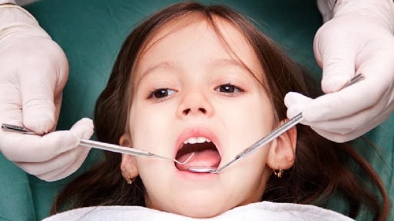 Lấy cao răng, loại bỏ mảng bám trên răng của trẻ