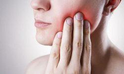 Viêm lợi sưng má là hiện tượng lợi bị sưng viêm gây ra sưng má