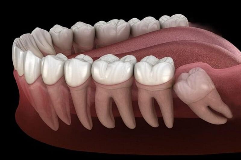 Nguyên nhân phần lớn là do tình trạng mọc răng khôn
