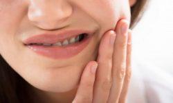 Viêm lợi trùm có mủ là bệnh lý xảy ra do răng số 8 mọc khi ở độ tuổi từ 17 đến 25 tuổi