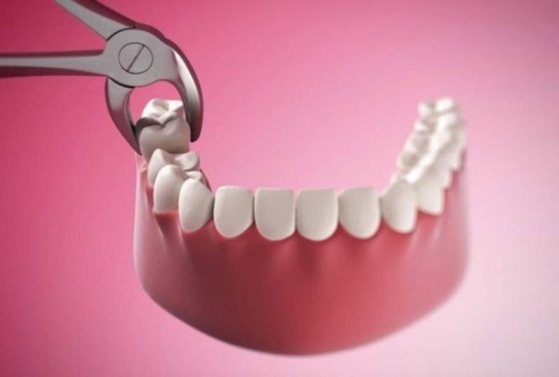 Việc nhổ răng khôn khi đang bị viêm lợi trùm răng khôn có lợi hơn có hại