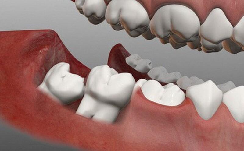 Có rất nhiều nguyên nhân gây ra tình trạng viêm lợi răng khôn