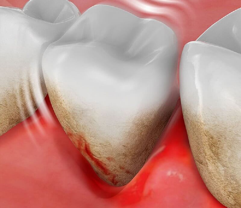 Mảng bám cao răng xuất hiện trên răng