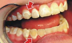 Viêm nha chu là hiện tượng vi khuẩn xâm nhập vào bên trong khoang miệng