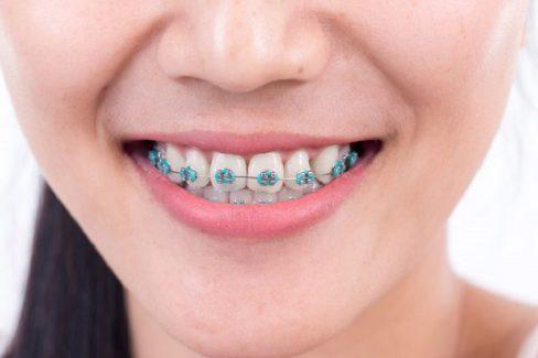Truy tìm nguyên nhân viêm nha chu khi niềng răng