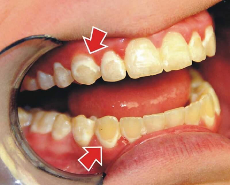 Mảng bám ngày càng cứng lại sẽ hình thành cao răng