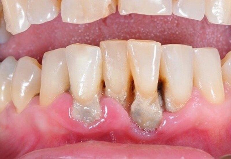 Giữa răng và nướu xuất hiện khoảng trống