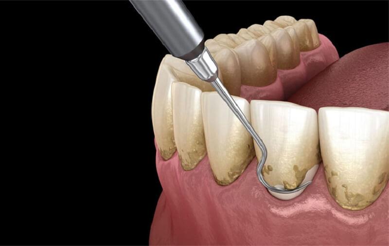 Phương pháp này có tác dụng ngăn chặn vi khuẩn, cao răng tích tụ
