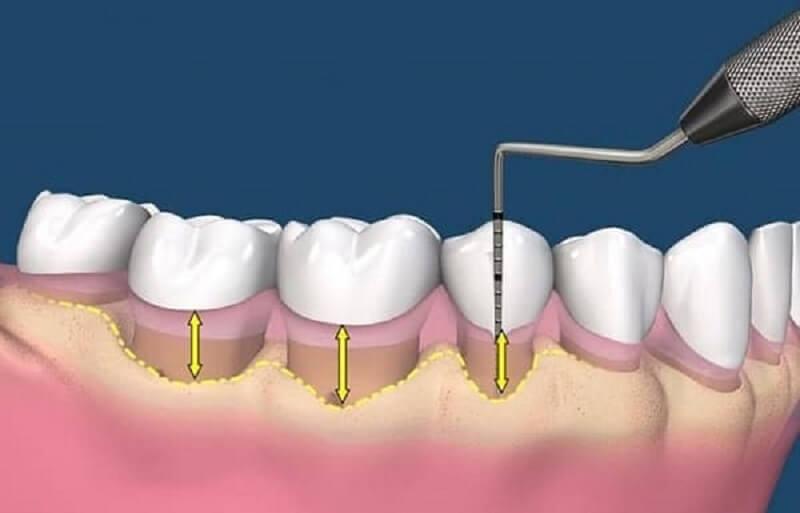 Ghép mô liên kết được chỉ định cho trường hợp đường viền nướu bị tụt xuống dưới