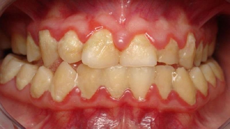 Bệnh viêm nha chu được đặc trưng bởi các mảng bám rắn chắc quanh chân răng