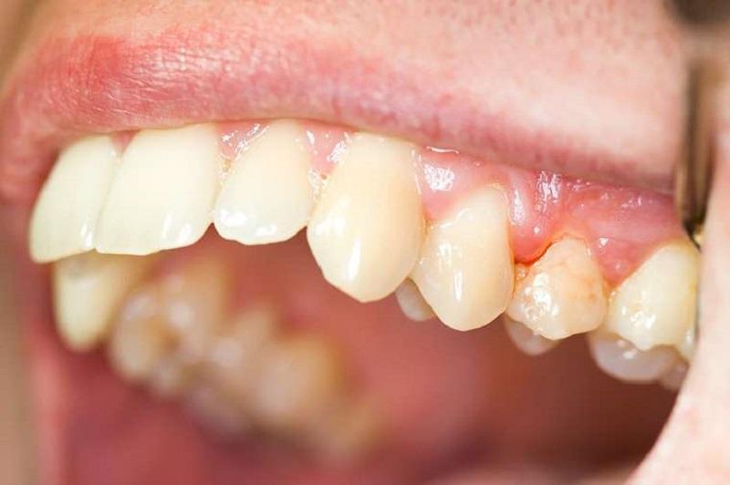 Vệ sinh răng miệng sai cách có thể gây ra viêm nướu râng