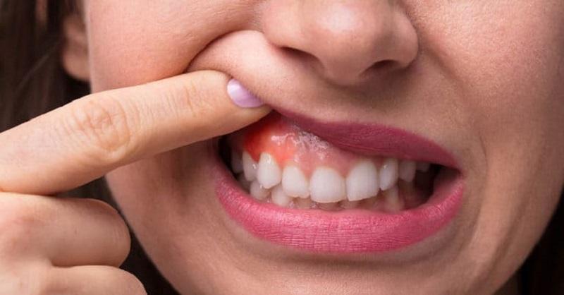 Viêm nướu răng là hiện tượng viêm nhiễm xảy ra ở quanh nướu răng