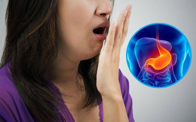 Hở van dạ dày gây nên nhiều vấn đề về sức khỏe