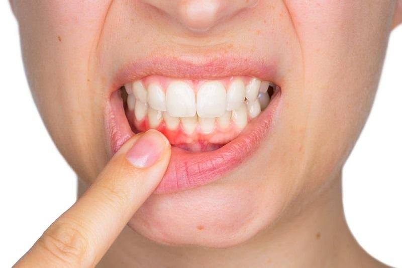 Hôi miệng có thể kèm theo sưng nướu hoặc chảy máu chân răng