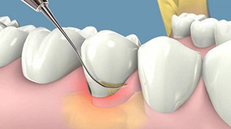 Cạo vôi răng giúp loại bỏ mảng bám, vi khuẩn