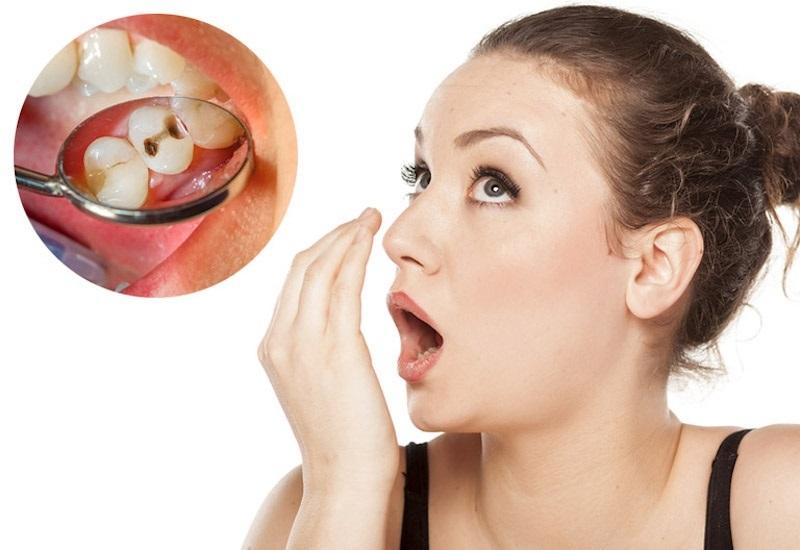Khi răng bị sâu, vi khuẩn sẽ xâm nhập và làm cấu trúc răng bị ảnh hưởng