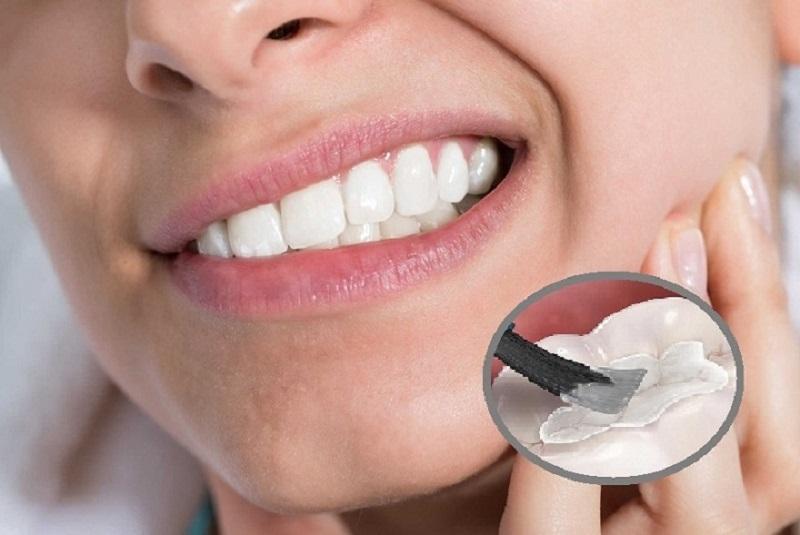 Trám răng là phương pháp sử dụng vật liệu để trám lại khu vực răng bị sâu
