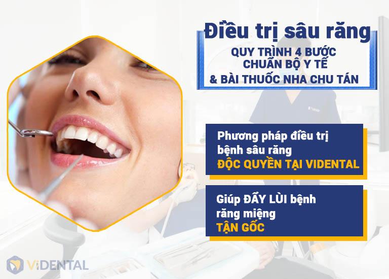 Phương pháp điều trị sâu răng độc quyền tại Vidental
