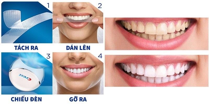 Cách sử dụng miếng dán trắng răng 3D Crest White cực đơn giản