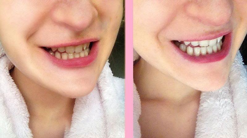Khi răng đã trắng sáng như mong muốn, bạn chỉ nên áp dụng sản phẩm này 1 tháng 1 lần