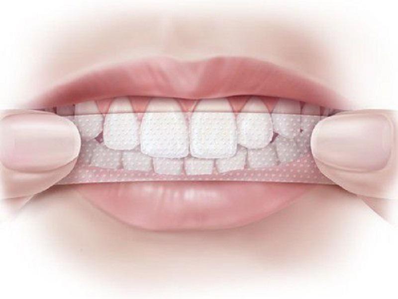 Tuyệt đối không dùng miếng dán làm trắng răng lâu hơn thời gian nha sĩ quy định
