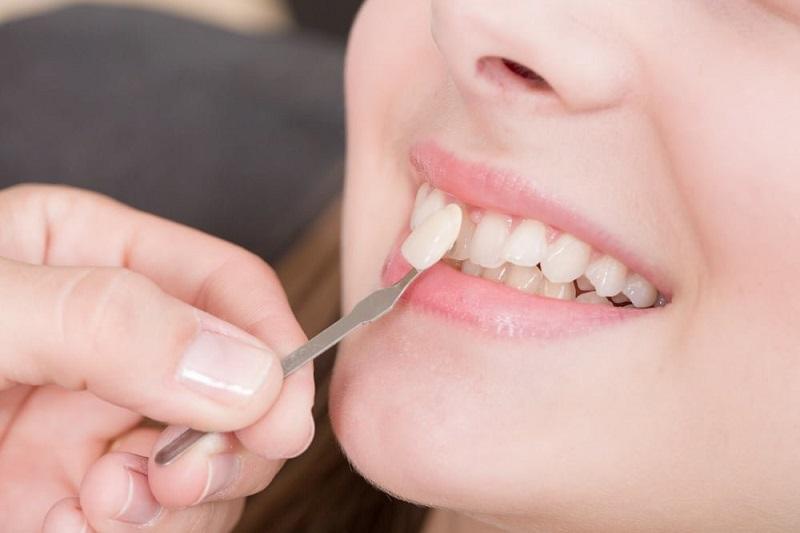 Cần phân biệt được dán sứ Veneer và bọc răng sứ là khác nhau
