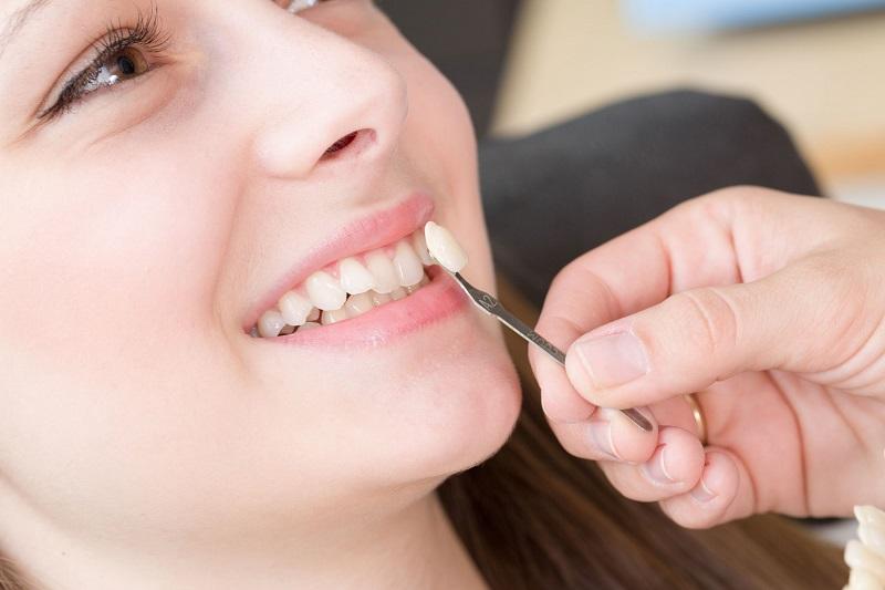 Phương pháp được chỉ định cho những người gặp vấn đề về răng sứt mẻ, cấp độ nhẹ