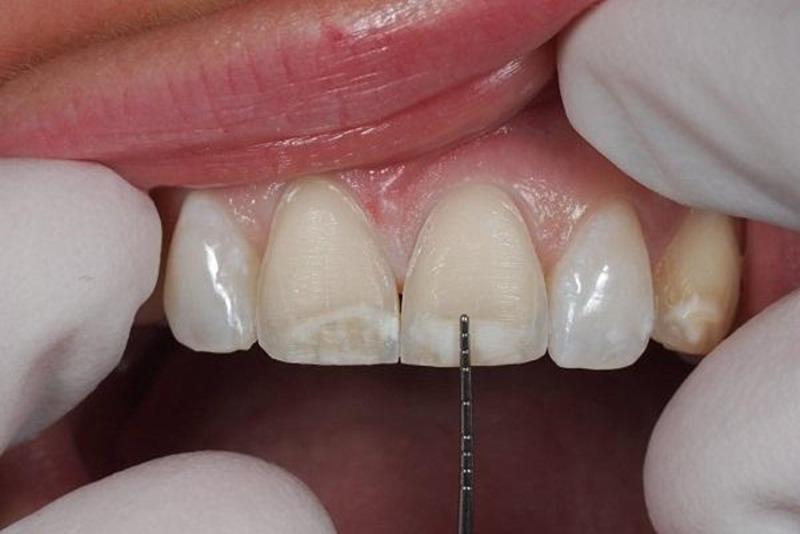 Mài men răng là một bước quan trọng trong quá trình dán sứ Veneer
