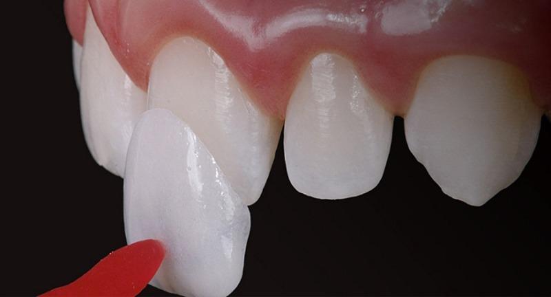 Veneer sẽ được đặt lên răng trước để xác định mức độ phù hợp với răng thật