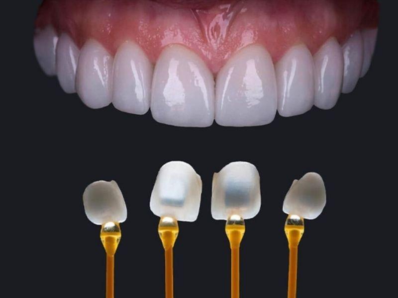 Ưu điểm của dán sứ Veneer là hạn chế được tối đa nguy cơ gây ê buốt răng.