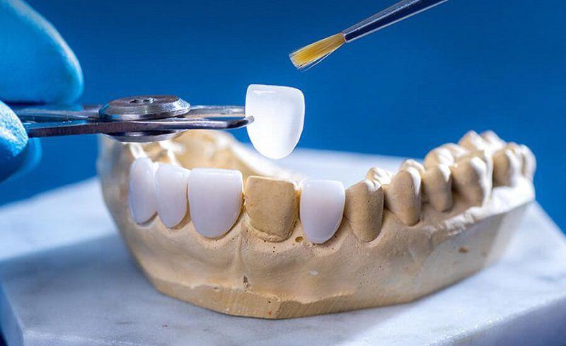 Những người có hàm răng bị thưa hay xỉn màu nên sử dụng phương pháp dán sứ Veneer