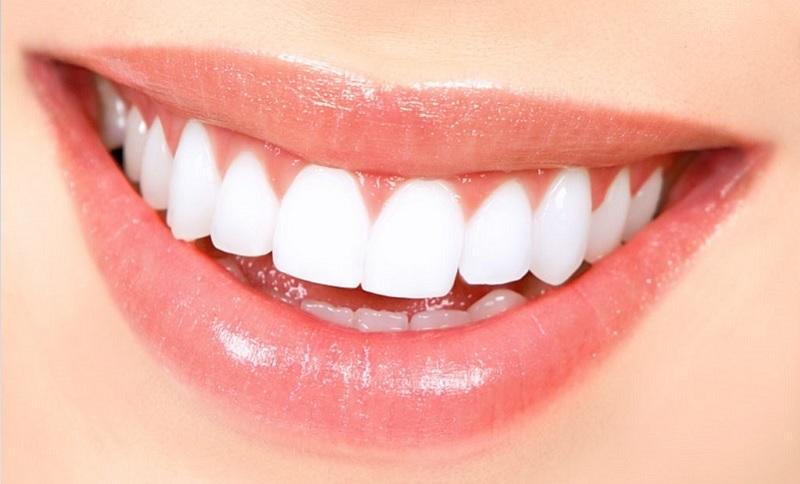 Đang mang bầu cần cẩn trọng nếu muốn làm răng dán sứ Veneer
