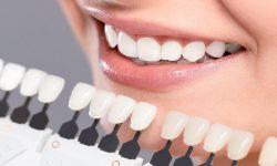 giá dán răng sứ