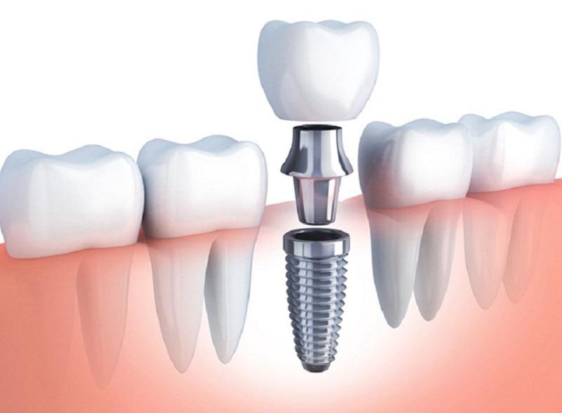 Giá trồng răng còn bị ảnh hưởng bởi giá nhập nguyên vật liệu
