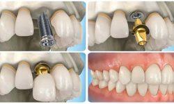 Có rất nhiều yếu tố ảnh hưởng đến giá trồng răng