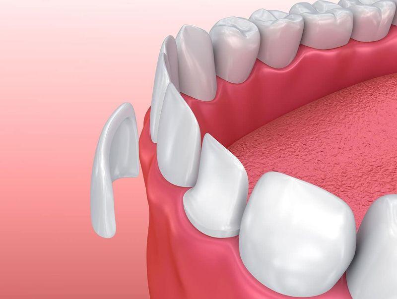 Kem dán răng là một sản phẩm nha khoa