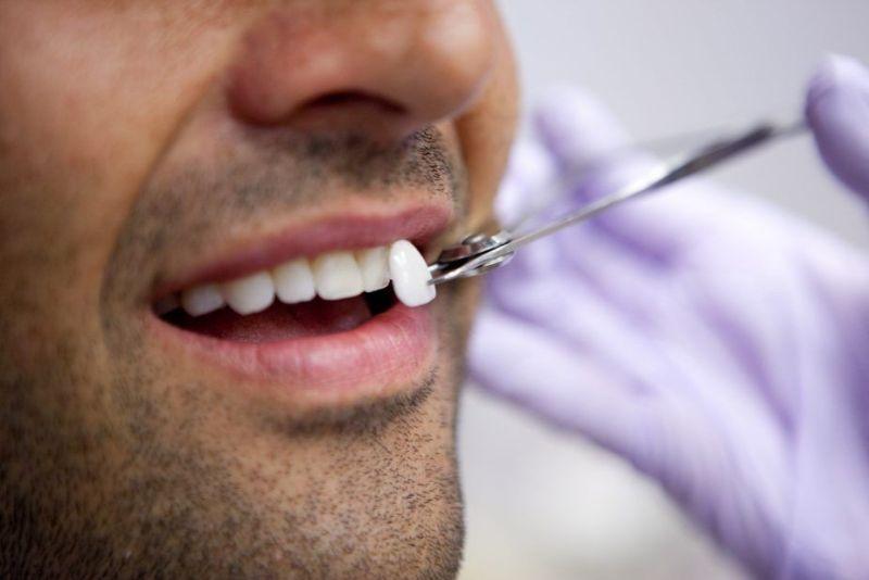 Keo dán dành cho loại răng sứ cố định
