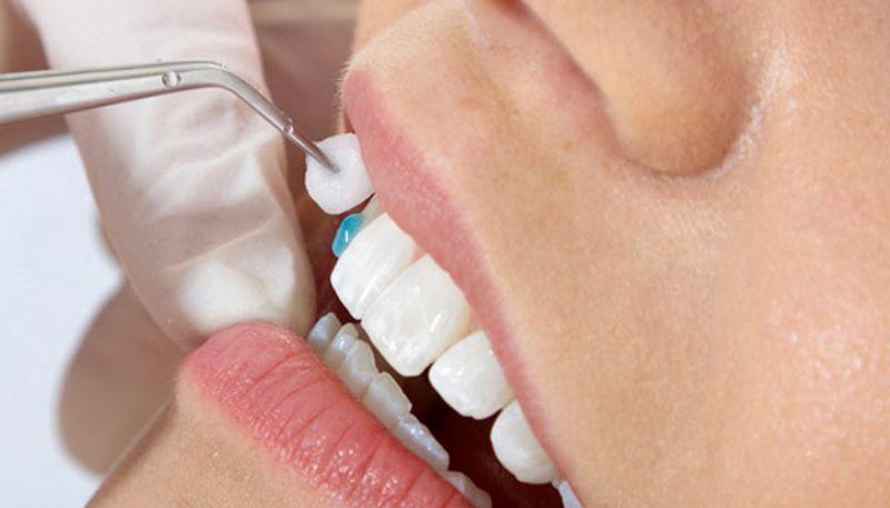 Bạn có thể lựa chọn sản phẩm phù hợp với nhu cầu và tình trạng răng