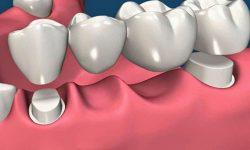 Keo dán răng sứ
