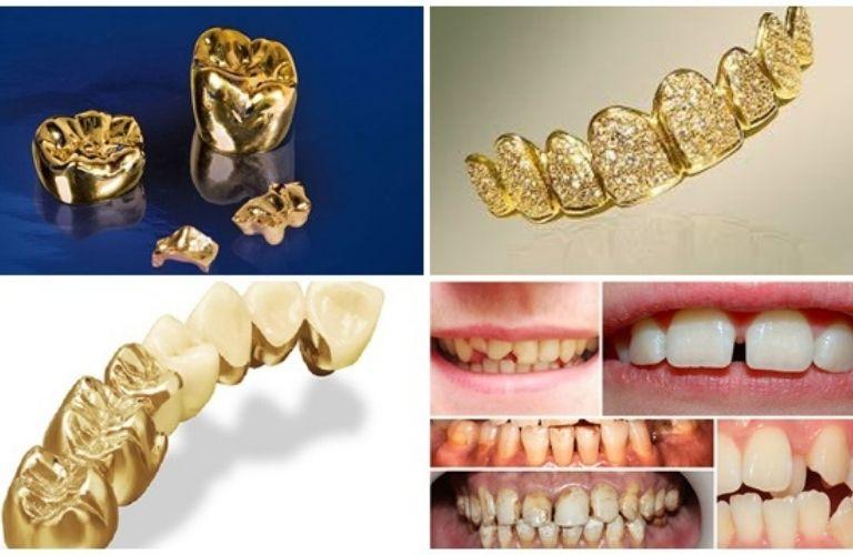 Nguyên liệu vàng được sử dụng trong nghiên cứu và chế tác tại Vidental.