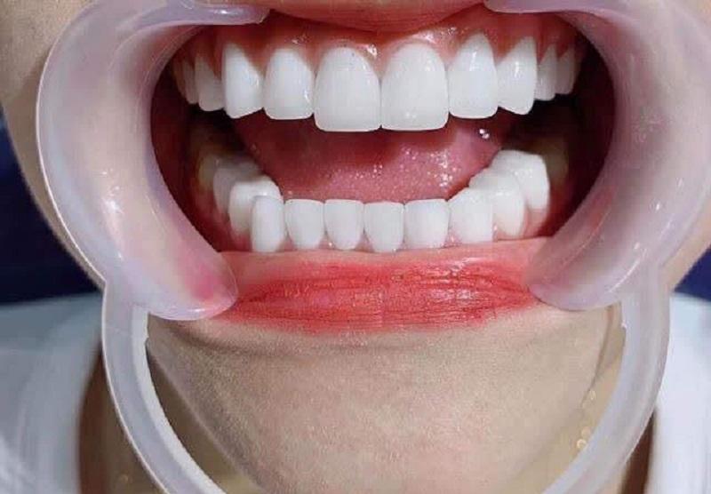 Bọc răng sứ thẩm mỹ tại Nha khoa HD MISA