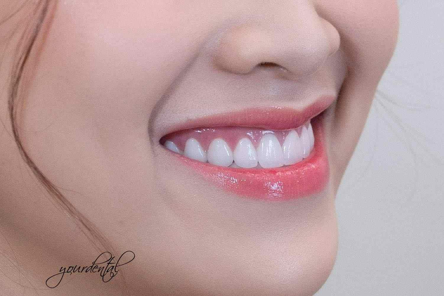 Your Dental - Sự lựa chọn hàng đầu của mọi người