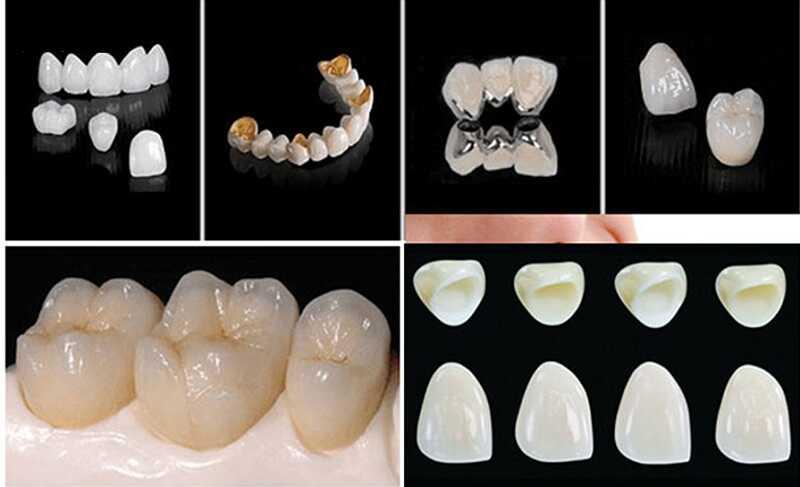 Dịch vụ làm răng thẩm mỹ đang dạng về mẫu mã, kiểu dáng, đảm bảo uy tín chất lượng tại Hoa Việt Mỹ