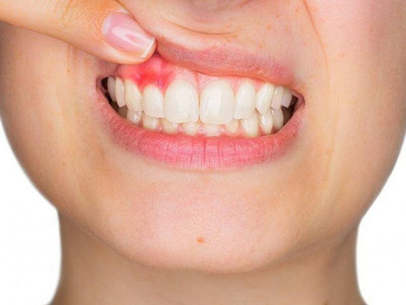 Bị vấn đề về răng miệng, hãy đến nha khoa Thủ Thiêm