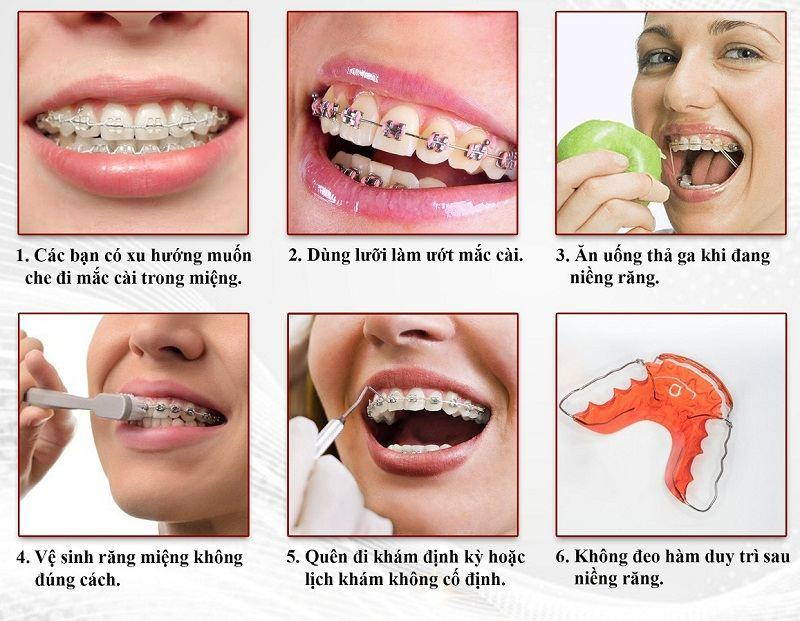 Những điểm nên tránh khi niềng răng