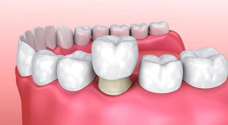 Bọc răng sứ là dịch vụ cực hot ở phòng nha PT