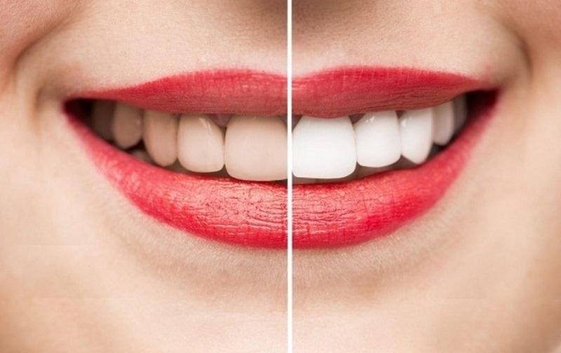 Dịch vụ tẩy trắng răng tại phòng khoa Dr. Smile được rất nhiều người tin tưởng lựa chọn