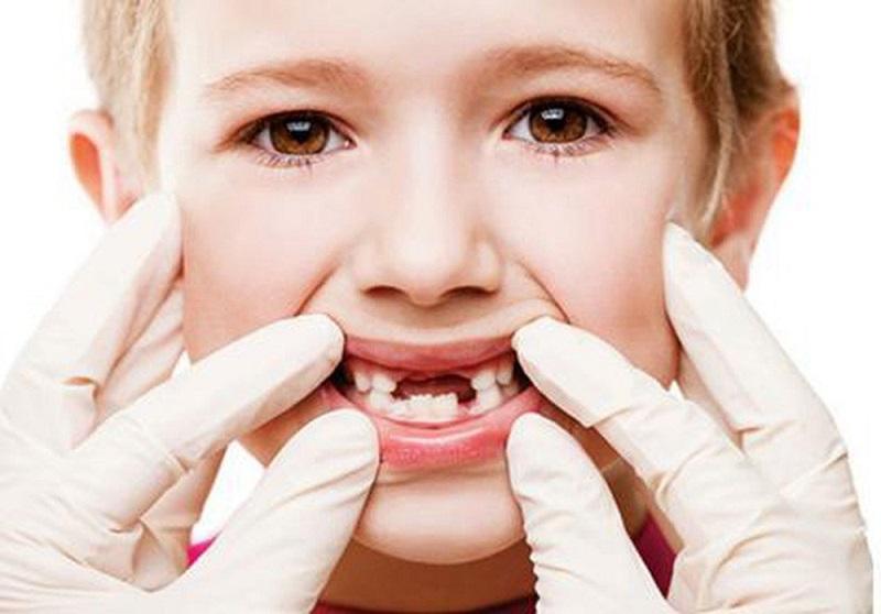 Nha khoa Quận 9 Pháp Việt có nhổ răng và điều trị răng cho trẻ